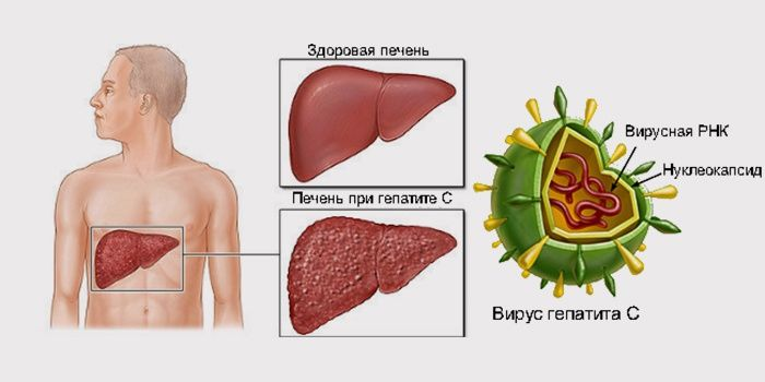 Гепатит с фото печени — img 1